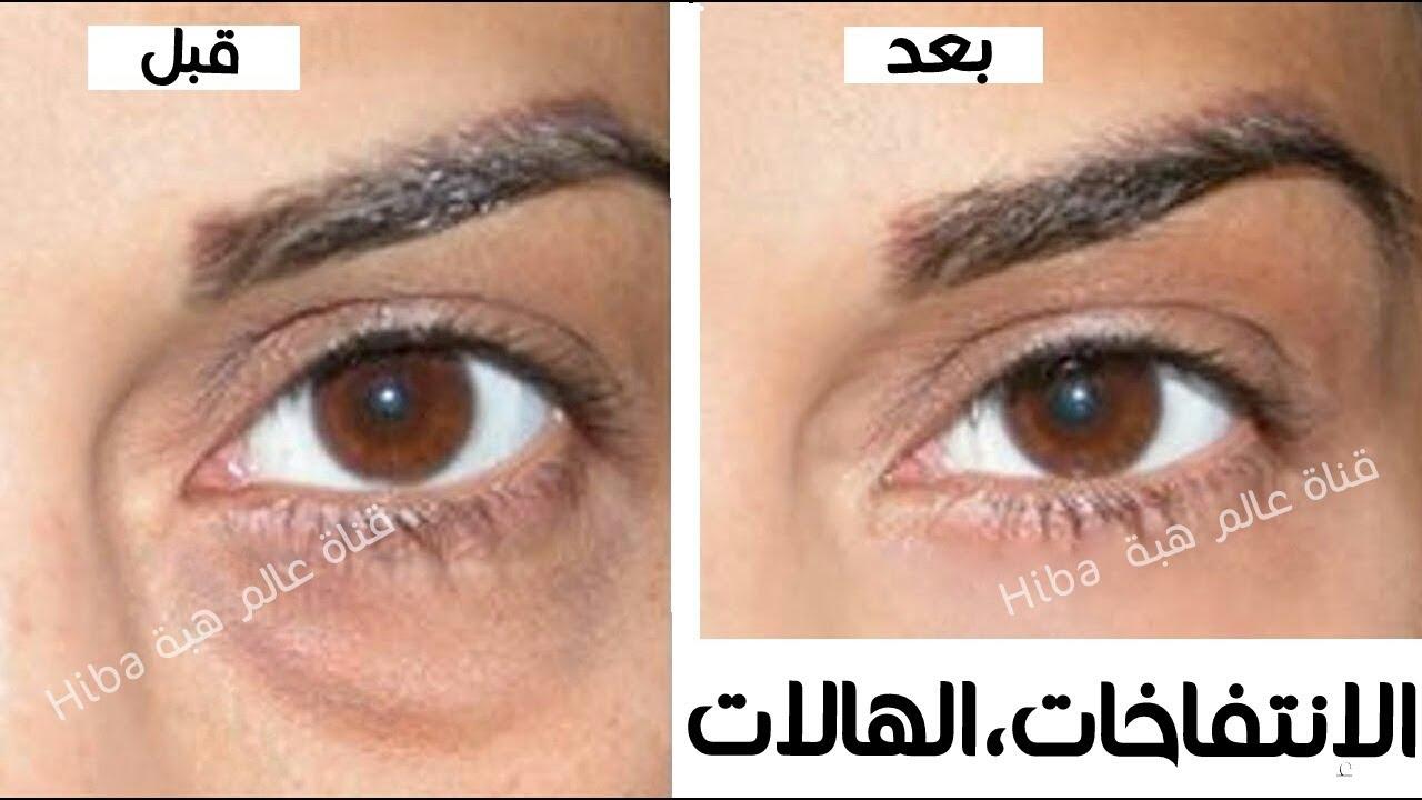 43ac9439b طريقة سريعة للتخلص من الهالات السوداء والانتفاخ تحت العين وعلامات الشيخوخة  حول العينين