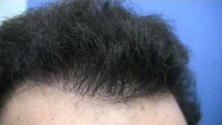Best Hair Transplant - Dr Hasson - 8882 Grafts