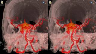Cavernous Meningioma - 3D Virtual Tour | UCLA Neurosurgery