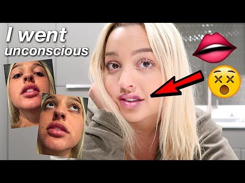 MY LIP INJECTIONS HORROR STORY! *I WAS TERRIFIED*