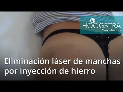 Eliminación láser de manchas por inyección de hierro (16066)