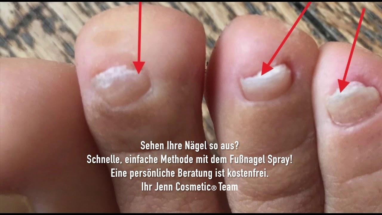 Fußnägel Krankheiten Bilder. Ihr Jenn Cosmetic® Team. - YouTube