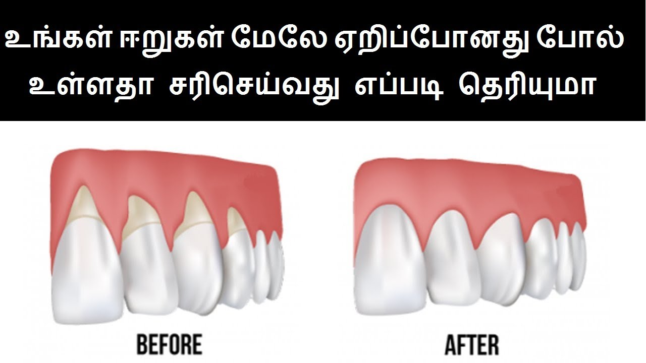 Natural Home Remedies for Teeth Gum diseases in Tamil | Teeth Health tips  in Tamil