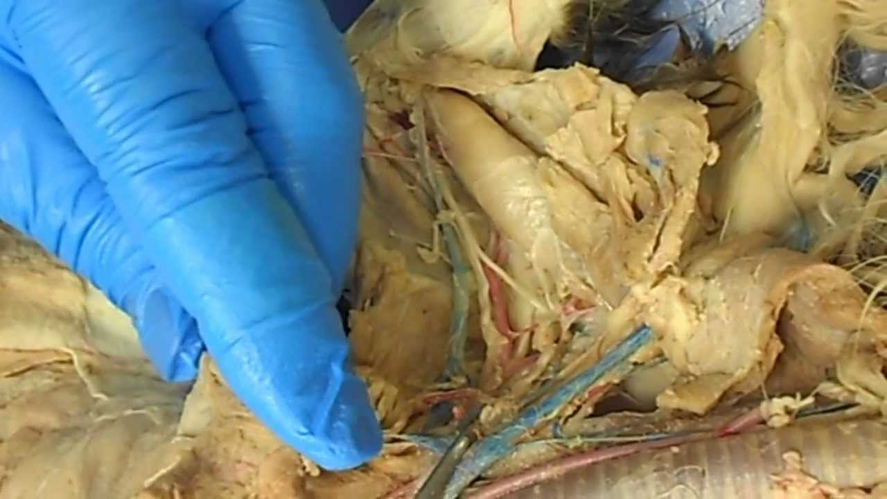 ANATOMY LAB PRACTICAL #3: VEINS AND ARTERIES PART 1 - YouTube