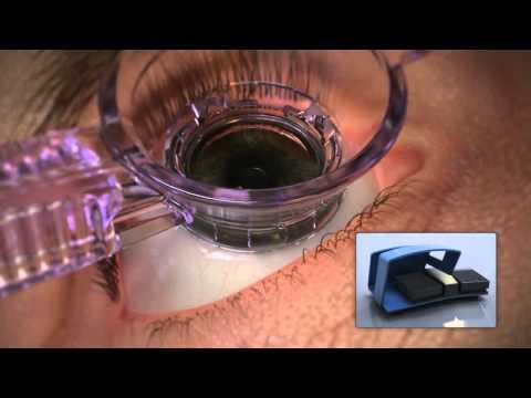millennium laser eye centers essay contest