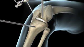 Izquierda parte dolor en rodilla interna la
