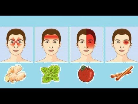 Какие продукты не есть чтобы не болела голова