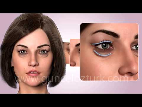 cosmetic-eye-surgery---upper-and-lower-eyelid-aesthetic---blepharoplasty.-guncel-ozturk,-md