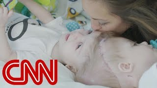 Rare surgery to separate conjoined twins