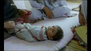 Pflege Beispiel: Afghanistan