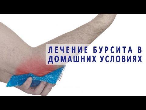 Как лечить локтевой бурсит в домашних условиях