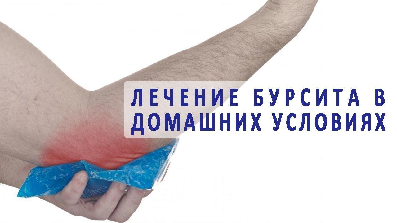 Что такое бурсит и когда начать лечение