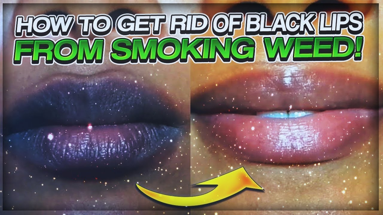 How To Get Rid Of Dark Lips From Smoking Weed