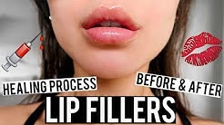 LIP FILLERS BEFORE AND AFTER & HEALING PROCESS VLOG | KatesBeautyStation