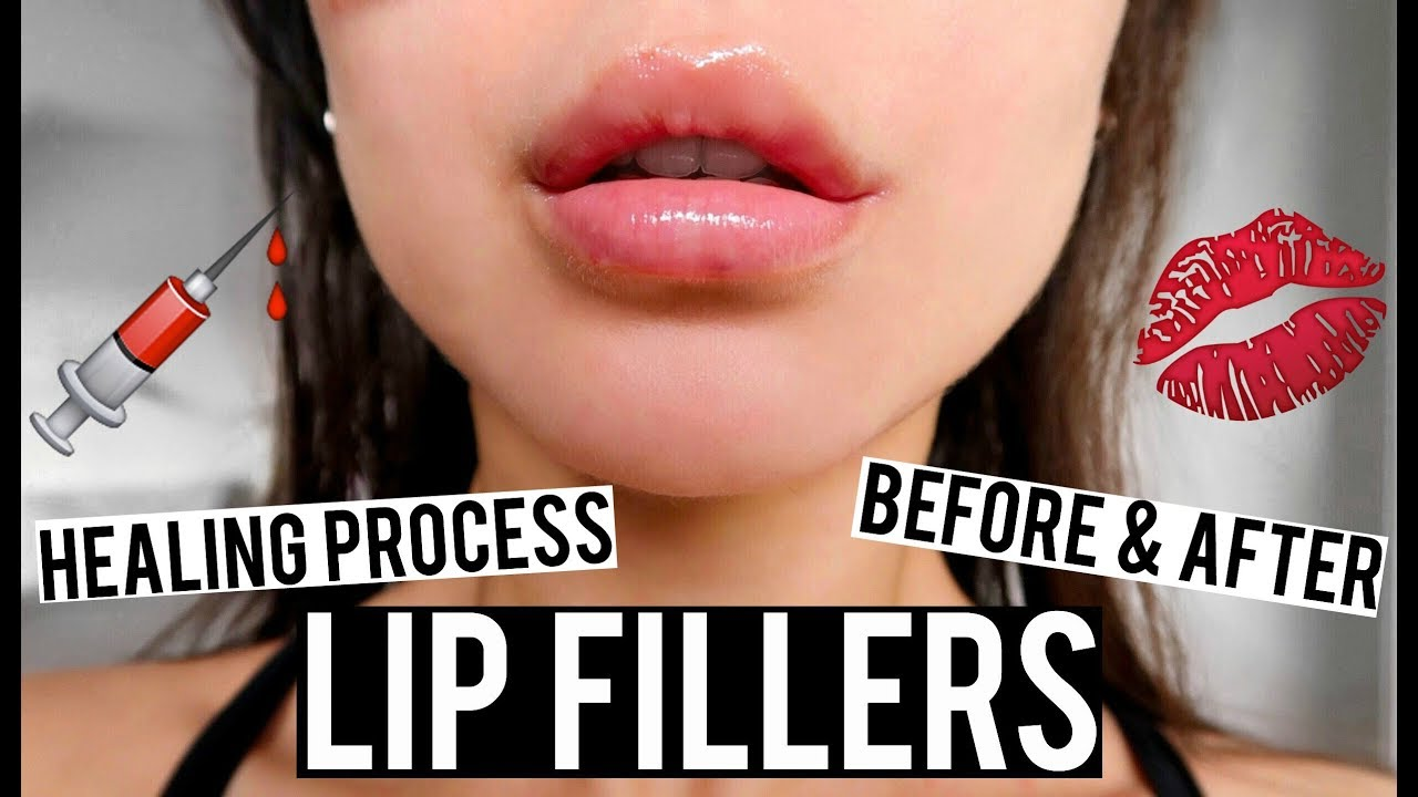 LIP FILLERS BEFORE AND AFTER & HEALING PROCESS VLOG | KatesBeautyStation