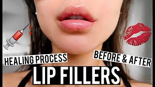 LIP FILLERS BEFORE AND AFTER & HEALING PROCESS VLOG | KatesBeautyStation(, 2017-11-26T12:00:03.000Z)