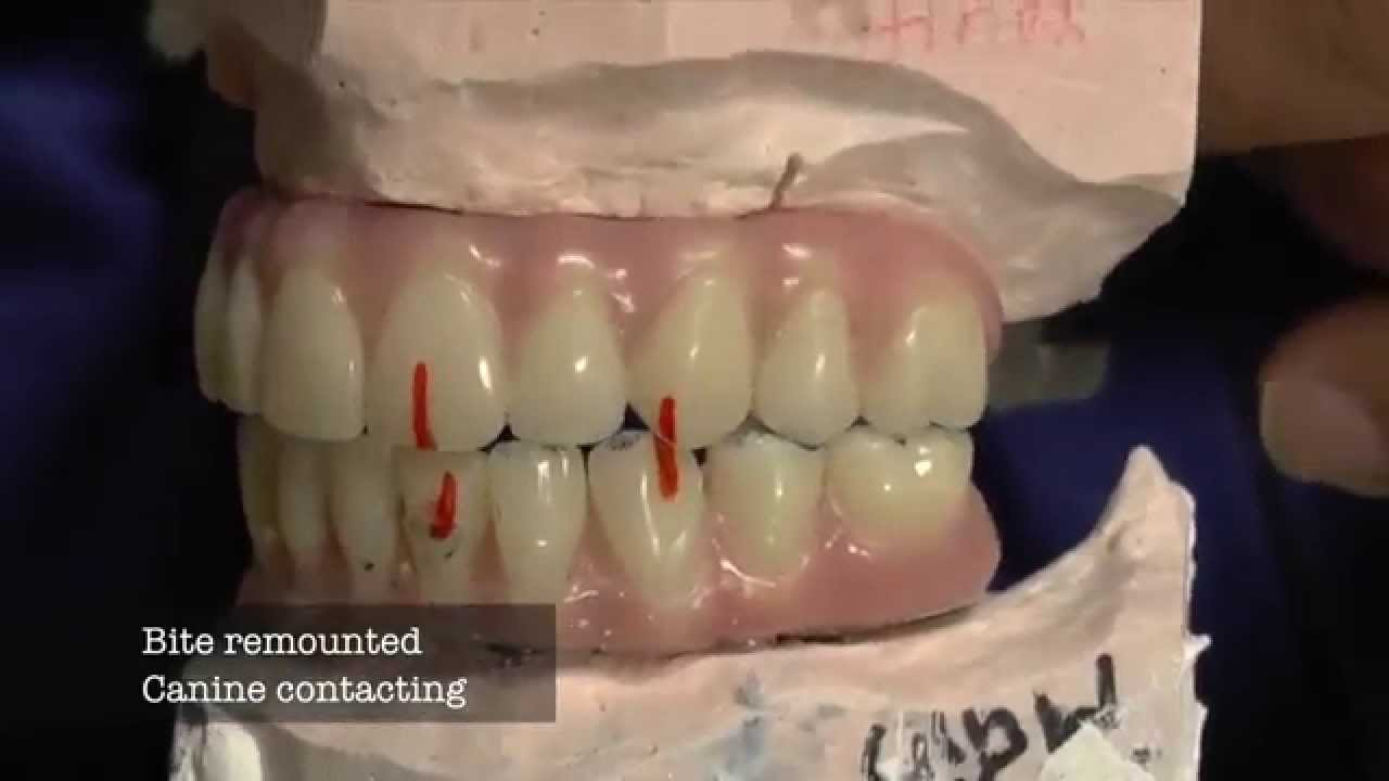Dental Implant -