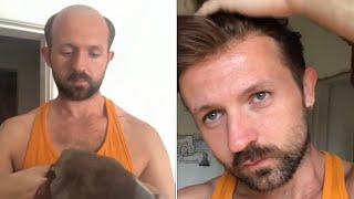 Hair System Tutorial: H๐w to Attach and Style a Men's Hair System | Lordhair