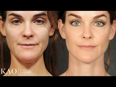 Massai Neck Lift: Katie\'s Transformation
