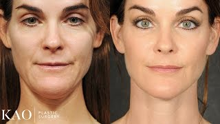 Massai Neck Lift: Katie