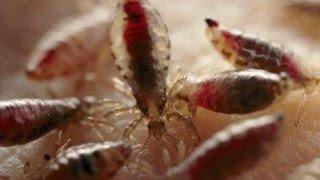 TERNYATA! Inilah Alat Pembasmi Kutu Busuk Dan Telurnya Di Kasur Paling AMPUH