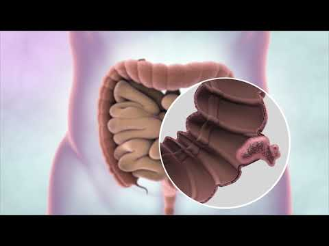 What Is Bowel Cancer? | Cancer Research UK (2019)