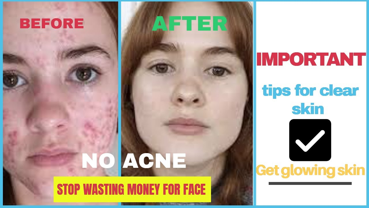 How To Remove Pimple |How to get clear skin | Remove Darkcircle | Get Glowing skin | Abhijeet Pandit