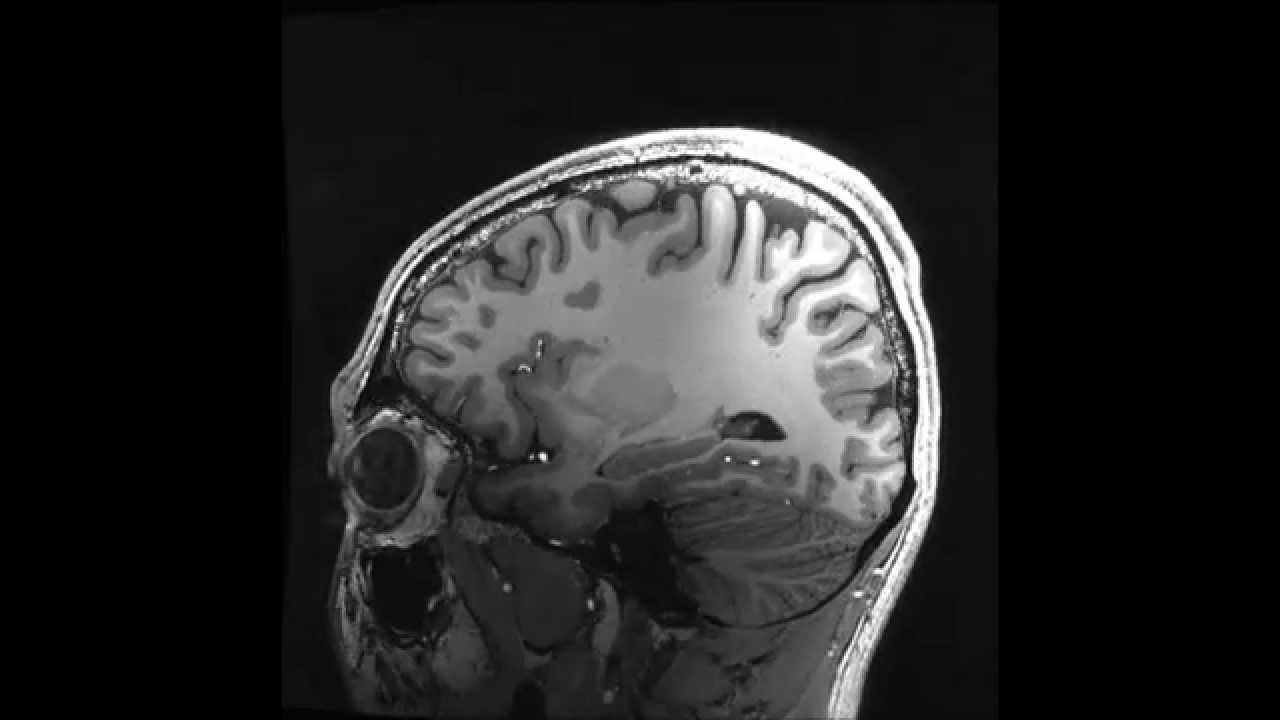 Highest resolution in vivo human brain mri using prospective motion highest resolution in vivo human brain mri using prospective motion correction ccuart Image collections