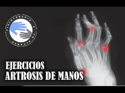 5 ejercicios sencillos para rodillas y pies con artritis