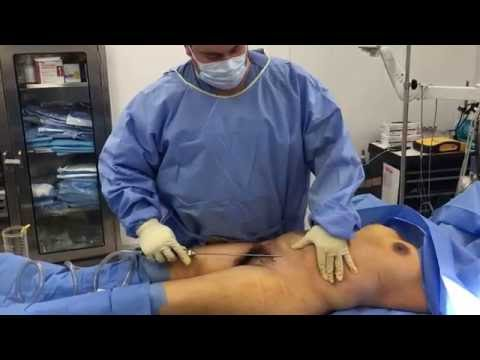 Liposuction of Abdomen and Breast Fat Transfer : Part 1 with Dr. Hughes