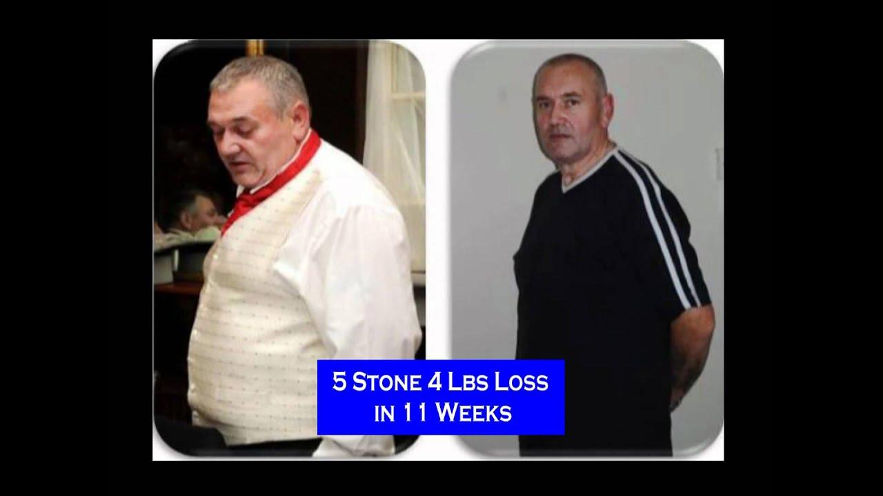 hypnoband hypno band weight loss system uk - YouTube