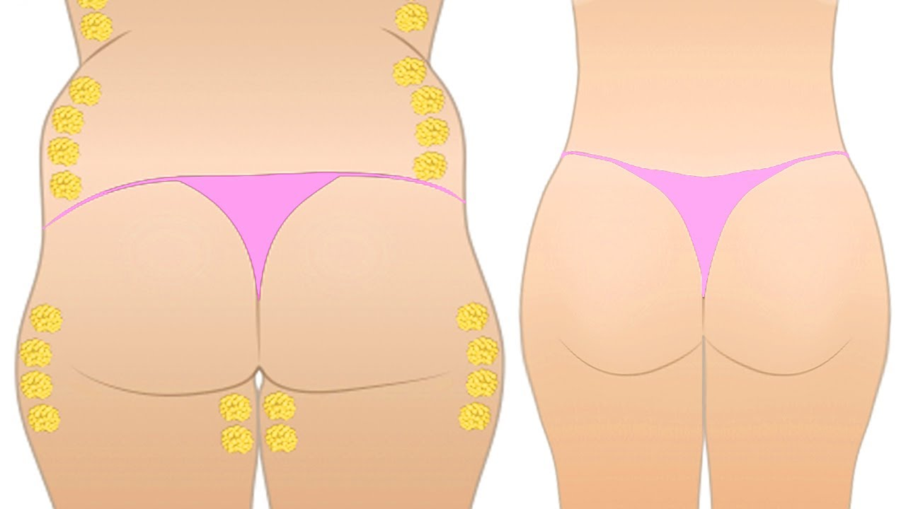 How to get rid of fat between bum and thighs
