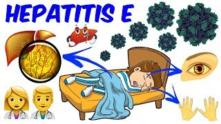 Hepatitis E!