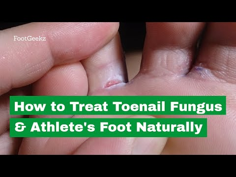 How to Treat Toenail Fungus & Athlete's Foot Naturally