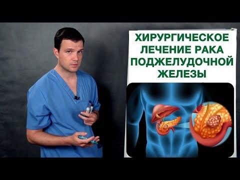 Рак поджелудочной железы хирургическое лечение. Врач-онколог Владимир Лядов.