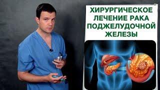 Рак поджелудочной железы - хирургическое лечение. Врач-онколог Владимир Лядов.