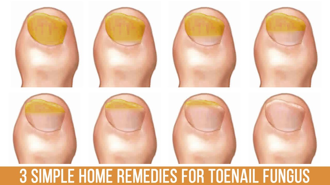 3 Simple Home Remedies for Toenail Fungus - YouTube