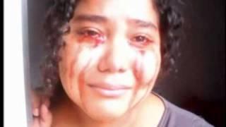 video da semana a menina que sangra pelos olhos