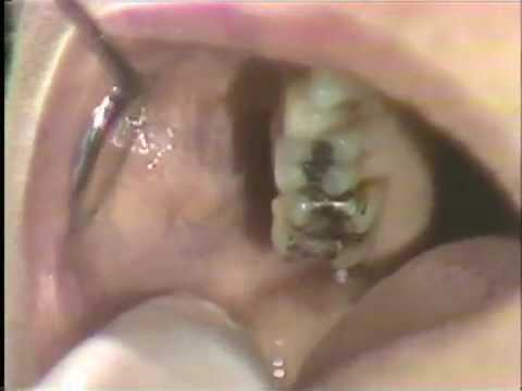 Examination of the Mouth