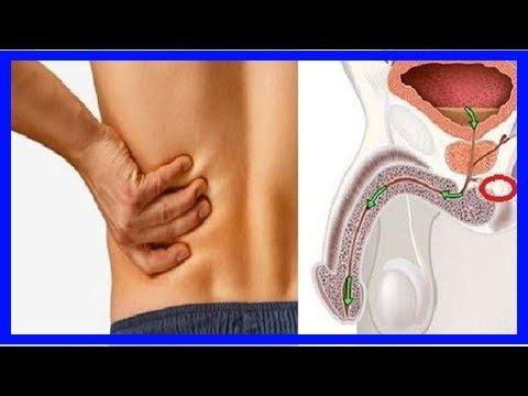 Symptome cancer prostate