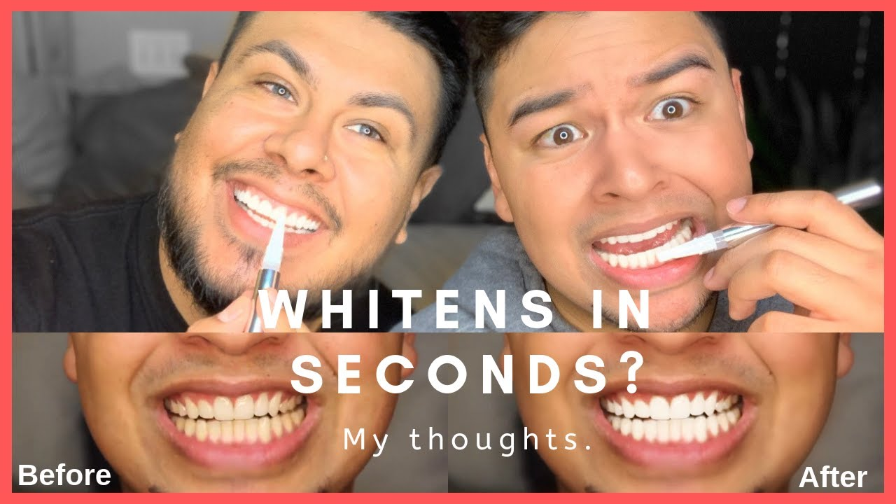 Teeth Whitening Pen That Works In Seconds Review Youtube