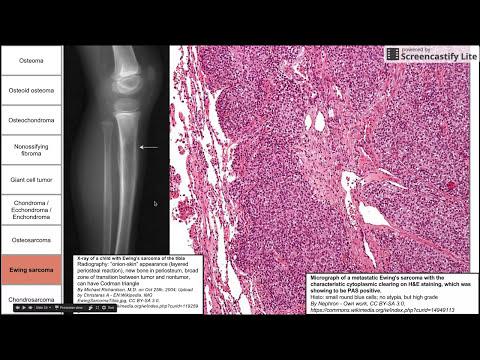 Bone and cartilage tumors