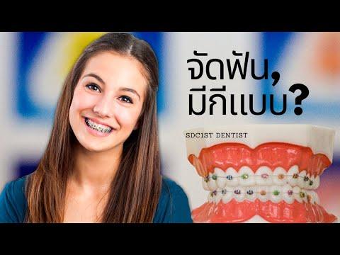 จัดฟัน ดัดฟัน รูปแบบจัดฟันทั่วโลก