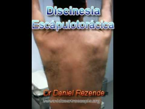 Discinesia Escápulo Torácica
