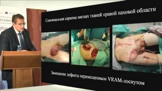 видео САРКОМА МЯГКИХ ТКАНЕЙ