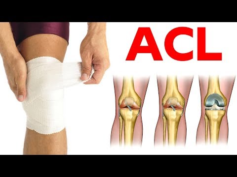 ACL Reconstruction: Procedure, Cost, Risk, Recovery And ACL Reconstruction Side Effects