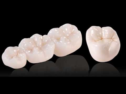 Dental Crown Types. Which is Best?