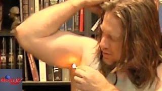 The Armpit