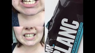 mr blanc teeht whitening strips   first time before and efter
