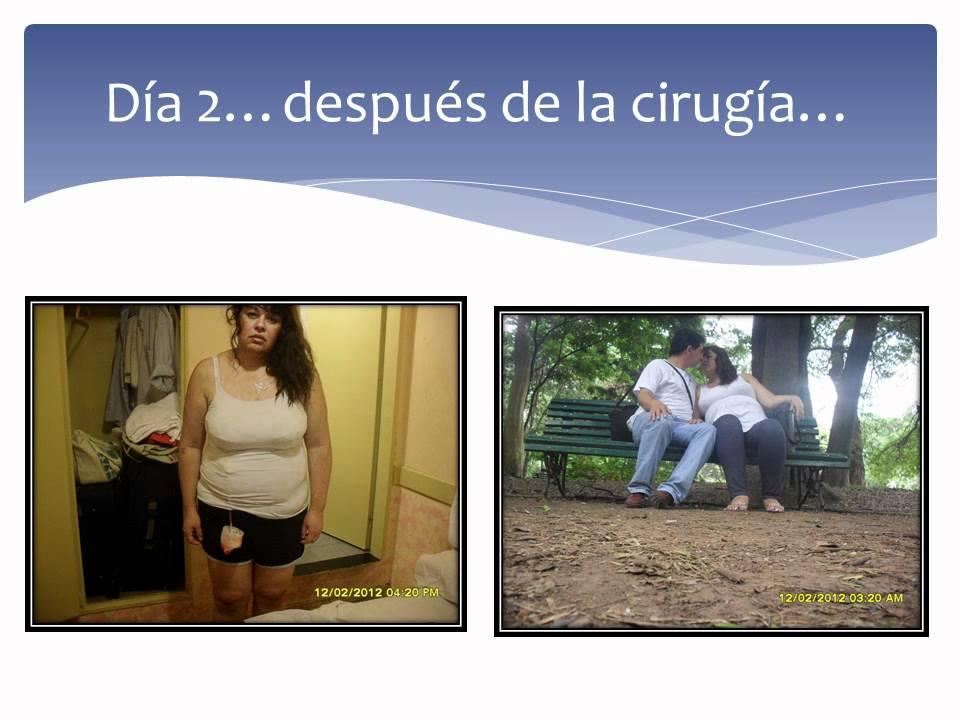 El antes y el despues de Alejandra.... - YouTube